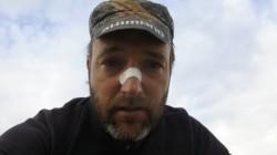 Eine Zeltstange hat sich verselbstständigt: Christian mit blutiger Nase
